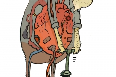 ClausRiis-Hjerte-pumpe